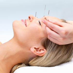image-copy-accupuncture