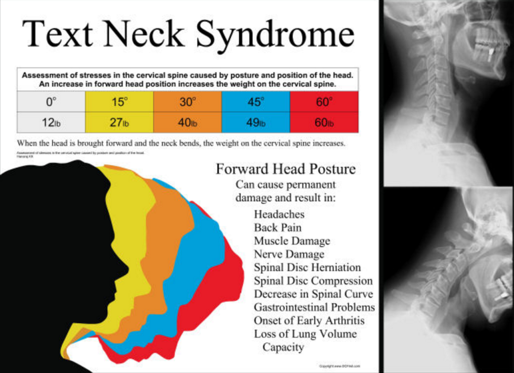 How Texting is Killing Your Neck