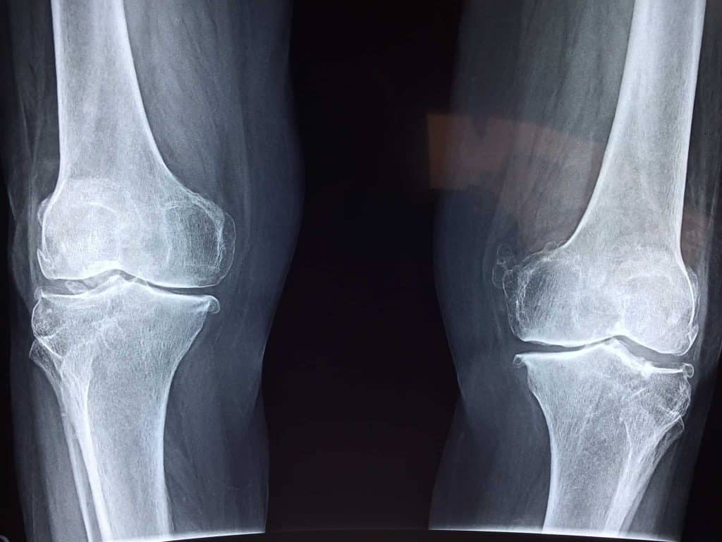 Knee Injuries and the Benefits of Chiropractic