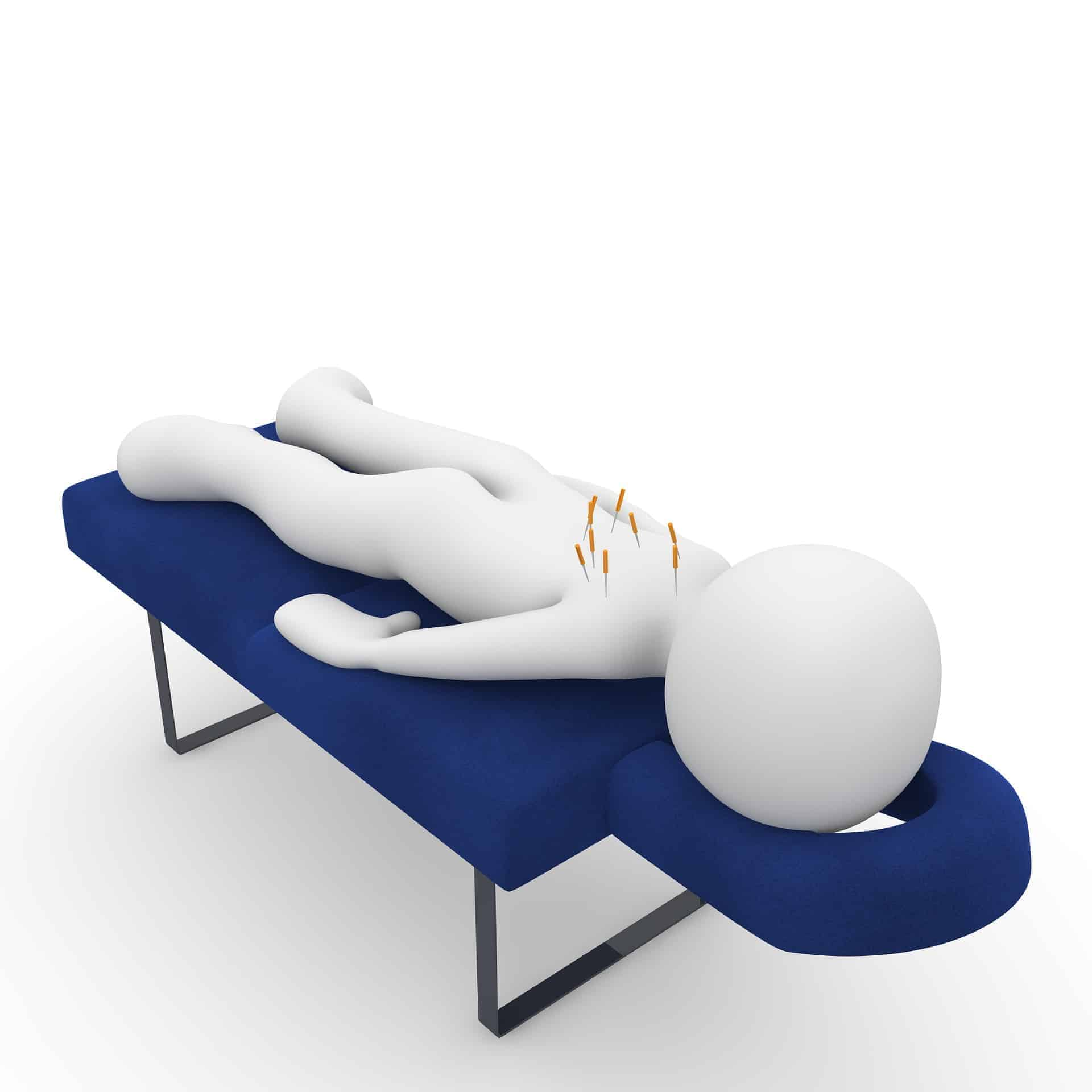 10 Benefits of Acupuncture